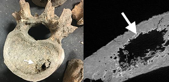 medieval cancer seen in human skeletal remains